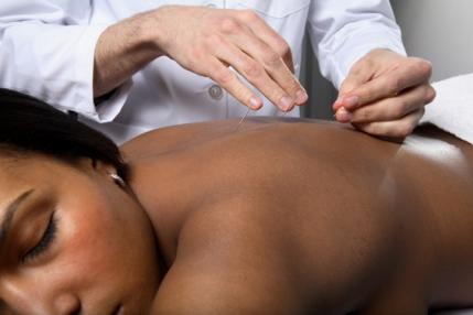 woman-acupuncture